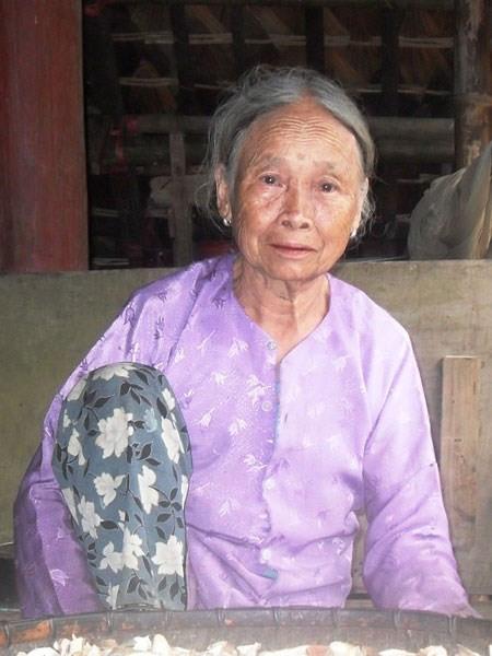 Cụ bà Hà Thị Lễ (85 tuổi), ở bản Lạng, xã Xuân Sơn, huyện Tân Sơn, tỉnh Phú Thọ - nhà đã có 3 đời chuyên chữa bệnh bằng cây thuốc Nam trước đây đã từng cho biết, có một người phụ nữ khoảng gần 40 tuổi tìm đến và bảo rằng tự dưng cảm thấy người béo lên nhưng sức khỏe ngày càng yếu đi, cứ làm việc là thấy mỏi mệt, sáng ngủ dậy mặt nặng, buổi trưa da tay cứng nhắc, rồi hai đùi phù lên, ấn lõm.